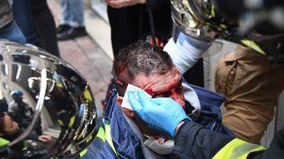 """Olivier Béziade, blessé lors d'une manifestation de """"gilets jaunes"""", à Bordeaux, le 12 janvier 2019. (MEHDI FEDOUACH / AFP)"""