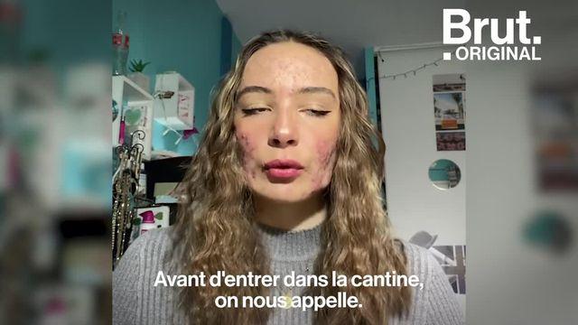 À 16 ans, Mattéa souffre d'acné sévère. Sur TikTok, elle raconte son quotidien.