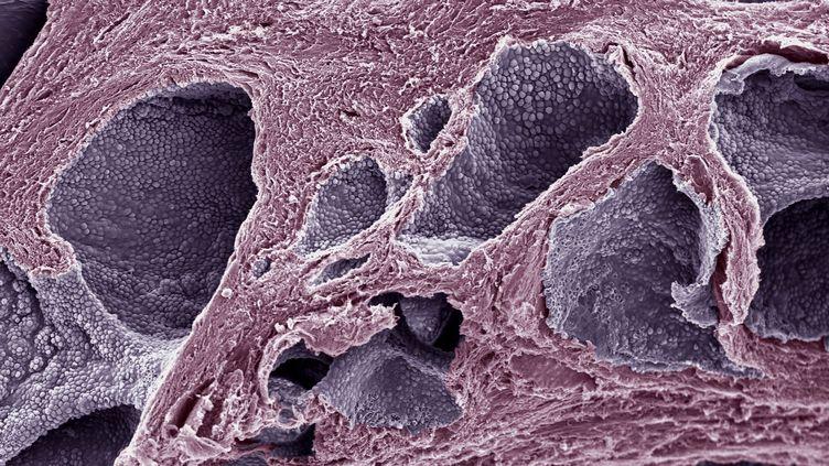 Des cellules cancéreuses (en violet) observées au microscope électronique. (STEVE GSCHMEISSNER / SGS / AFP)