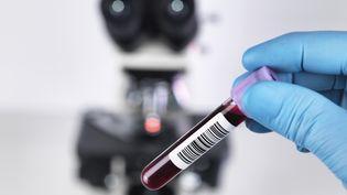 Il n'y aura pas de vaccin contre le sida avant plusieurs années. (RAFE SWAN / CULTURA CREATIVE / AFP)