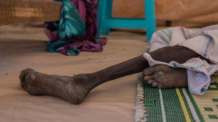 Un Soudanais de 18 ans, un an après l'apparition de la famine dans la province de Leer (Soudan du Sud) en février 2017. (STEFANIE GLINSKI / AFP)