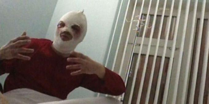 Sergueï Filine, la tête bandée, s'exprime pour la télévision russe le 18 janvier 2013, depuis un hôpital de Moscou (RenTV via APTN)  (AP / Sipa)