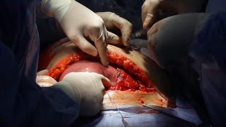 La chirurgie in utero est plus efficace qu'une opération réalisée après l'accouchement (© Dr. Wael Elbanna - د. وائل البن)