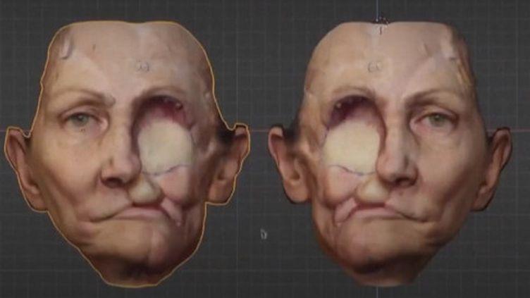 Reconstruction facile : un nouveau visage grâce à l'impression 3D (FRANCEINFO)