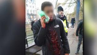 Le jeune Lilian, 15 ans, blessé à la joue par ce qui pourrit être un flashball le samedi 12 janvier à Strasbourg (CAPTURE ECRAN FRANCE 3)
