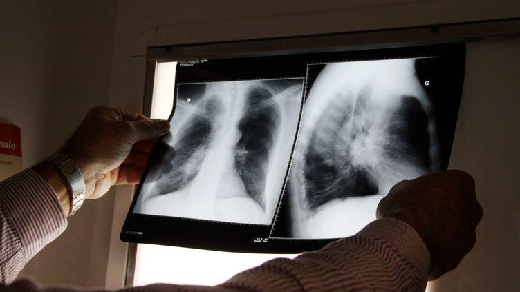 Un medecin regarde des radios de poumons. (Illustration). (PHOTO PIERRE HECKLER / MAXPPP)
