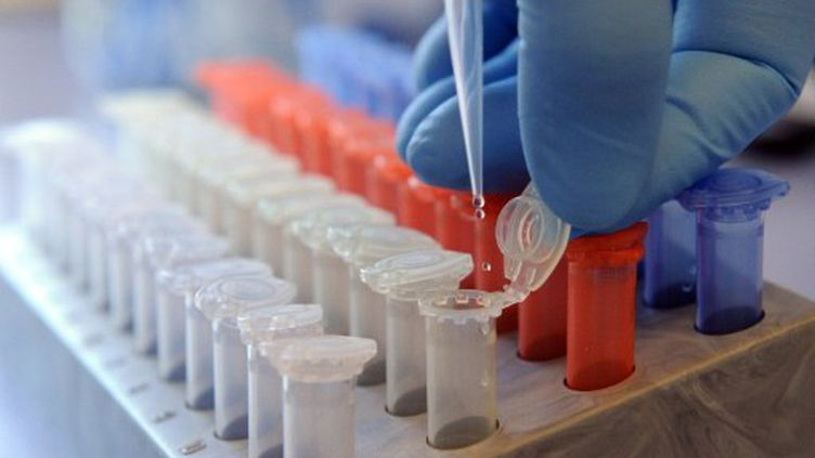 A l'Institut vétérinaire d'Hanovre, en Allemagne: test pour identifier la bactérie Eceh, le 1er juin 2011. (CAROLINE SEIDEL / DPA / AFP)
