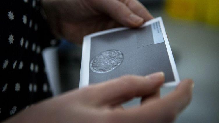 Une femmeregarde une photo d'un ovule fertilisé, après trois échecs de fécondation in vitro en Espagne, le 17 novembre 2016. (AMELIE-BENOIST / BSIP)