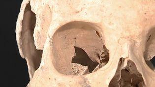 Après des années de spéculations autour de l'identité d'un mystérieux squelette retrouvé dans un manoir de Dordogne, les analyses ont dévoilé quelques détails sur l'homme en question. (FRANCE 3)