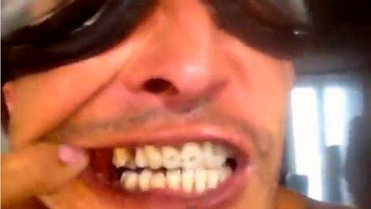 """Capture d'écran de la vidéo """"Sans dents"""" du rappeur Axiom. (AXIOM OFFICIEL / YOUTUBE)"""