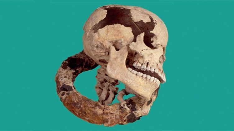 Carcan de punition en fer associé à un crâne et des phalanges de main provenant d'une sépulture d'esclave. Découverte fortuite faite sur la plage des Raisins Clairs à Saint-François (Guadeloupe) en 1992 (Musée départemental Victor Schoelcher - Conseil général de la Guadeloupe)