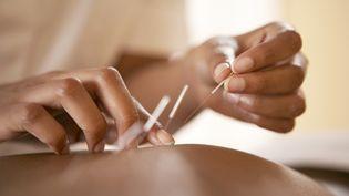 L'acupuncture est l'une des quatre pratiques examinées par l'Académie nationale de médecine. (ADAM GAULT / AGU / AFP)