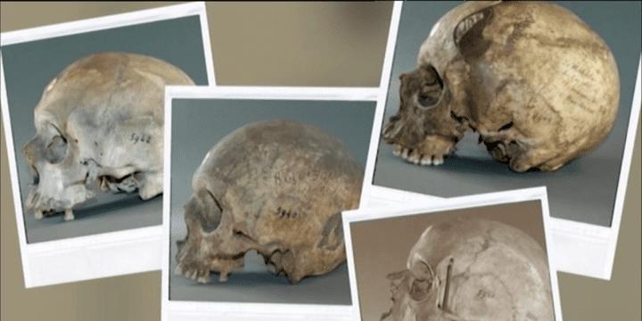 Photographies représentant des crânes de combattants algériens détenus par le Musée de l'Homme.  (France 3 / Culturebox)
