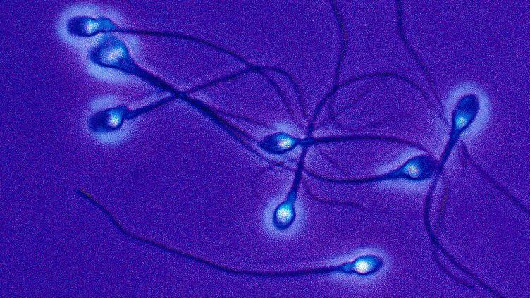 Les spermatozoïdes lents seraient plus résistants une fois arrivés dans l'appareil reproducteur de la drosophilefemelle. (DEREK BERWIN / GETTY IMAGES)