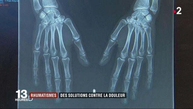 Santé : des solutions contre les rhumatismes