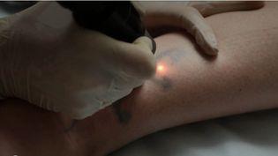 Près d'un Français sur cinq porte aujourd'hui un tatouage. Parfois, certains regrettent leur choix et s'orientent vers des séances de laser. (FRANCE 3)