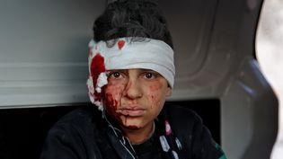 Un jeune syrien blessé lors d'un bombardement à Maarrat Misrin, le 25 février 2020. (ABDULAZIZ KETAZ / AFP)