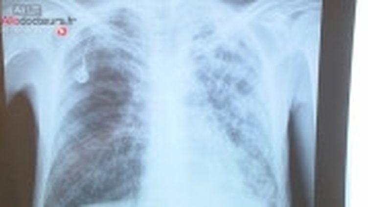 Associée aux mineurs, la silicose pulmonaire n'est pas une maladie du passé.