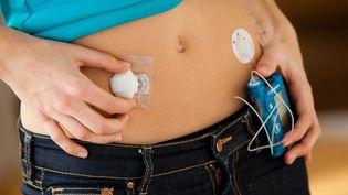 Aux Etats-Unis,les implants le plus souvent mis en cause sontles pompes à insuline équipées d'un capteur de glycémie, comme celle-ci. (GARO / PHANIE / SAIP)