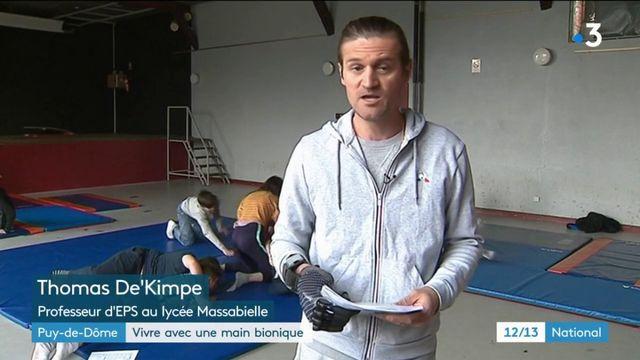 Puy-de-Dôme : un professeur d'EPS avec une main bionique