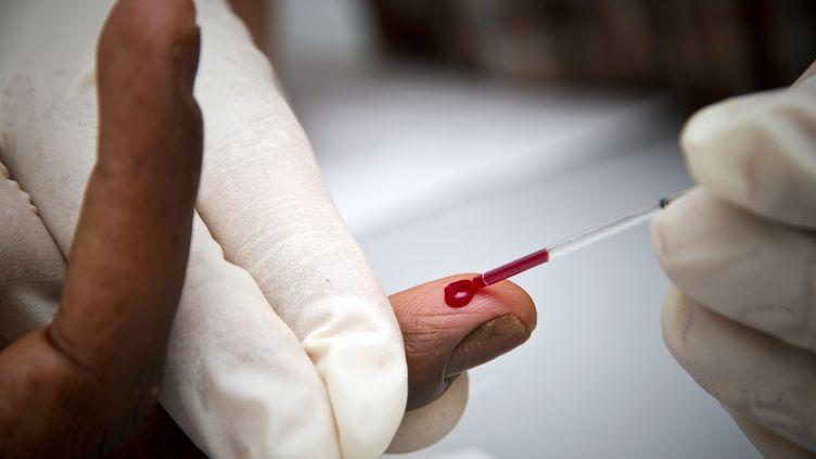 Un test de dépistage rapide du VIH (photo d'illustration). (JODY AMIET / AFP)