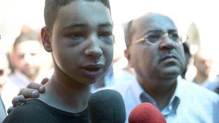 Tareq Abou Khdeir, adolescent américain d'origine palestinienne remis en liberté, le 6 juillet 2014 à Jérusalem. (SALIH ZEKI FAZLIOGLU / ANADOLU AGENCY)