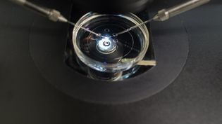 Unefécondation in vitropratiquée dans un centre médical de Magdebourg (Allemagne), le 17 janvier 2018. (KLAUS-DIETMAR GABBERT / DPA-ZENTRALBILD / AFP)