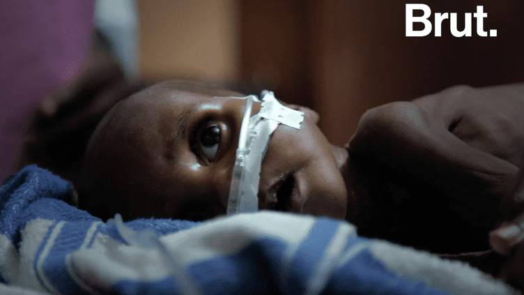 VIDEO. Au Tchad, des milliers d'enfants touchés par la malnutrition sévère aigüe (BRUT)