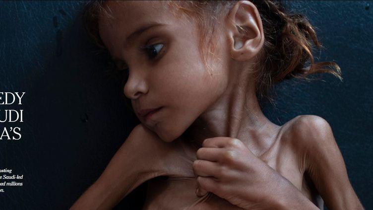 """Capture d'écran de l'article du """"New York Times"""" consacré à la famine au Yémen. (NEW YORK TIMES)"""