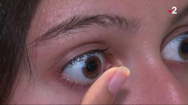 Myopie : un nouveau traitement pour la freiner chez les enfants
