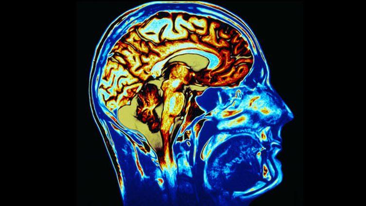 Le cerveau humain. (JEFF SHERMAN / TAXI)