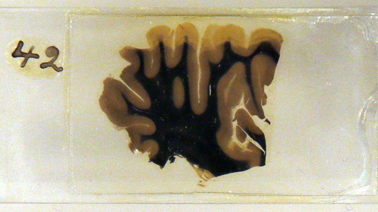 Une tranche du cerveau d'Albert Einstein, exposée à la Wellcome Collection de Londres, à partir du 29 mars 2012. (CHRIS HELGREN / REUTERS)