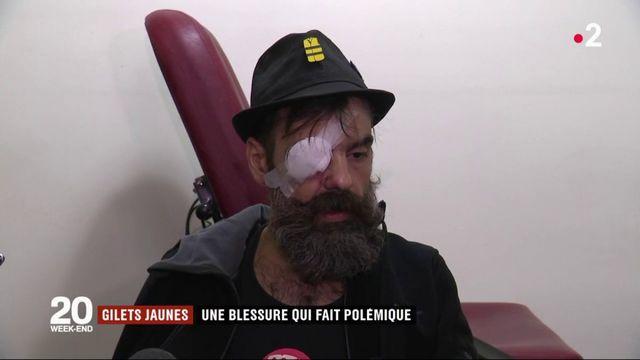 """""""Gilets jaunes"""" : la blessure à l'œil de Jérôme Rodrigues fait polémique"""
