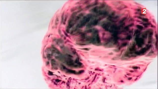 Médecine : les grandes prouesses du cerveau