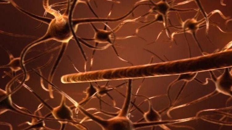 Alzheimer : l'espoir d'une nouvelle piste de prévention ?