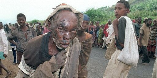 Un réfugié rwandaisgrièvement blesséet des centaines d'autres déplacés, le 8 Juillet 1994, près de la ville de Gikongoro, au Rwanda. (PASCAL GUYOT / AFP)