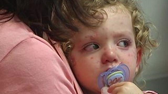 Une épidémie de varicelle sévit en France