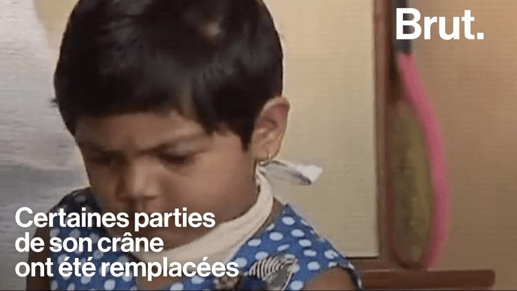VIDEO. Une petite fille de 4 ans reçoit une greffe du crâne en Inde (BRUT)