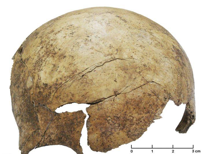 Crâne fracturé d'un enfant de 8 ans environ, datant d'il y a 7000 ans et faisant partie du même charnier préhistorique de Schöneck-Kilianstädten.  (Christian Meyer/AP/SIPA)
