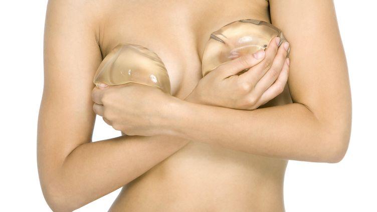 Une femme se couvre la poitrine avec des implants mammaires en silicone. (ALIX MINDE / ALTOPRESS / PHOTOALTO)
