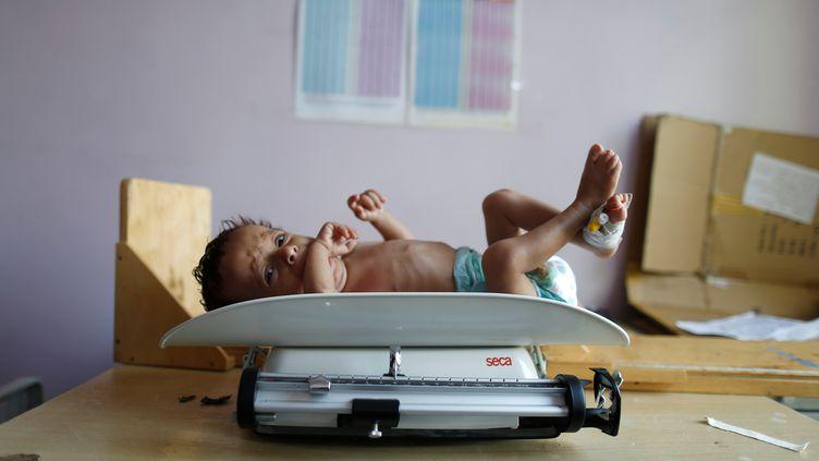 Un enfant malnutri à l'hôpital de Sanaa au Yémen, le 11 septembre 2018. (KHALED ABDULLAH / REUTERS)
