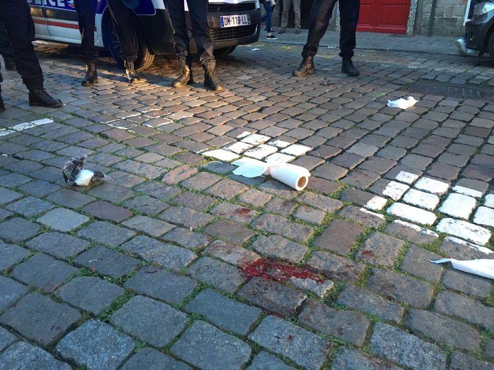 Un supporter anglais a été blessé à Lille (Nord), mercredi 15 juin 2016, lors d'une rixe avec des supporters russes. (FABIEN MAGNENOU / FRANCETV INFO)