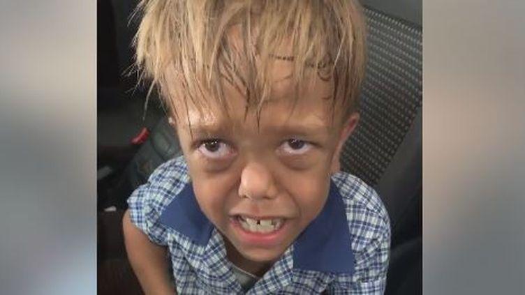 Extrait d'une vidéo mise en ligne sur Facebook par la mère du jeune Quaden Bayles, 9 ans, victime de harcèlement. (YARRAKA BAYLES / FACEBOOK)
