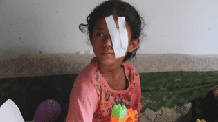 Une enfant yéménite blessée (France 24)