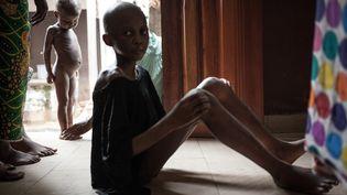 Enfants souffrant de malnutrition, photographiés au complexe pédiatrique de Bangui, le 4 décembre 2018. (FLORENT VERGNES / AFP)