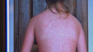 Alors que les autorités alertent sur la baisse du taux de vaccination, la rougeole a fait sa première victime en France en 2019. (CAPTURE D'ÉCRAN FRANCE 3)