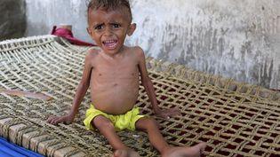 Un enfant yéménite souffrant de malnutrition dans un village pauvre près du port de Hodeida, tenu par les rebelles. La famine menace toute la région. (STRINGER / AFP)