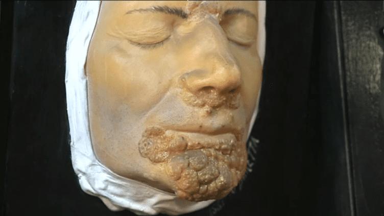 Moulage d'une maladie de peau exposée au musée des moulages de l'hôpital Saint-Louis à Paris. 4800 pièces sont présentées dont de nombreuses donnent une vision très réaliste des ravages de la syphilis.  (France 3)