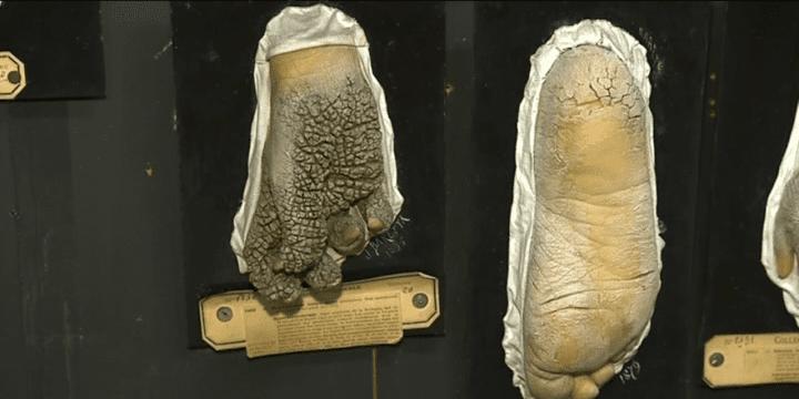 Moulage en cire d'une maladie dermatologique de l'hôpital Saint-Louis à Paris  (France 3)