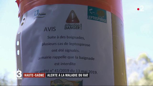 Hautes-Saône : trois personnes contaminées par la maladie du rat après une baignade